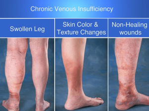 Discolored Skin? You May Have Chronic Venous Insufficiency