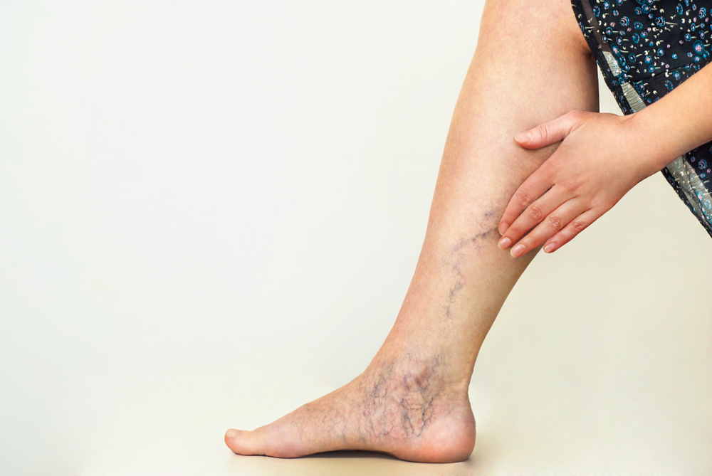 7 Home Remedies for Varicose Veins - southflcardio